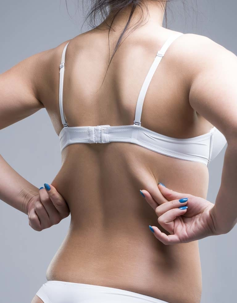 Refresh Cosmetic Clinic - Bra Roll Excision