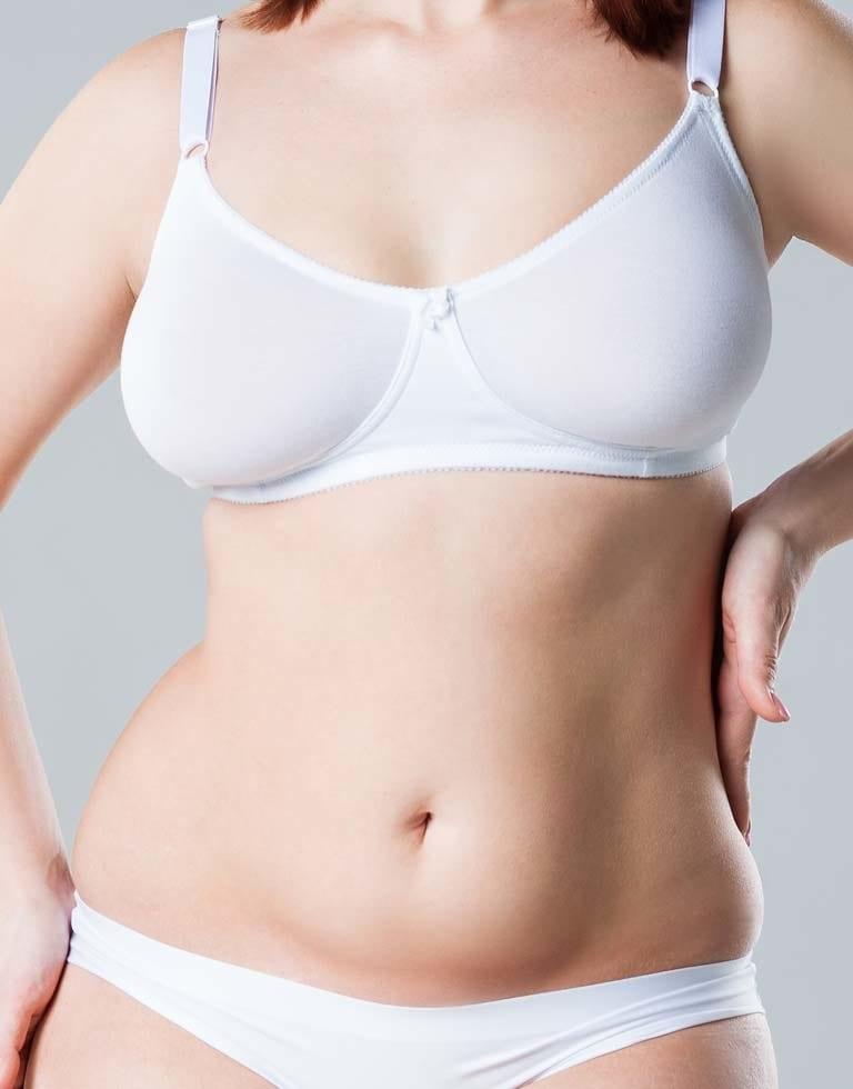 Refresh Cosmetic Clinic - Mini Tummy Tuck