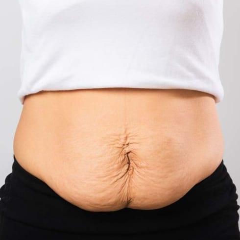 Post Pregnancy Tummy - Body Condition Refresh