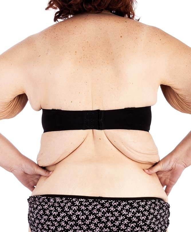 Post Weight Loss Excess Skin - Body Condition Refresh