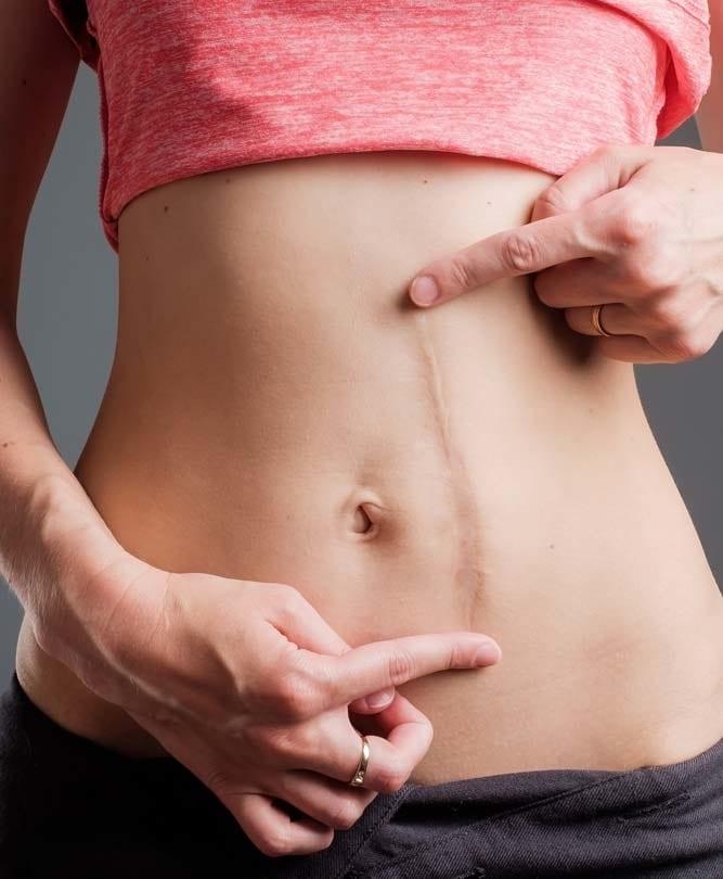 Scars -Body Condition Refresh