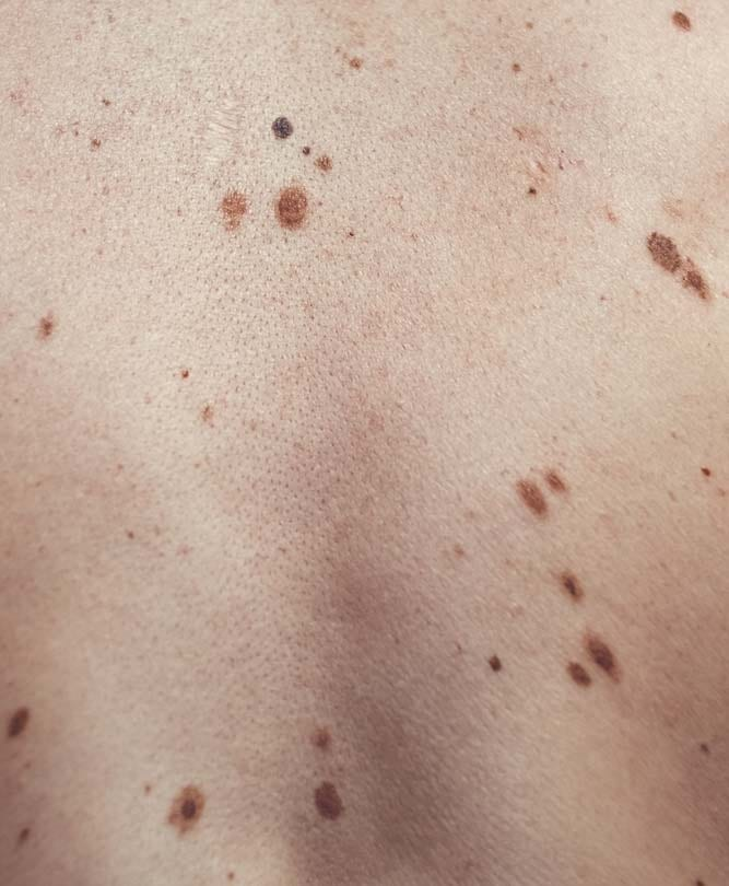 Skin Lesions - Skin Condition Refresh