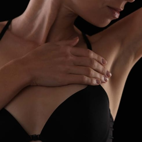 Accessory Breast Tissue Excision