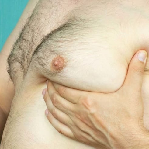 Male Breasts