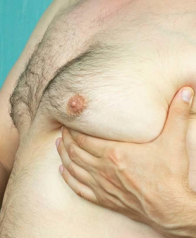 Male Breasts - Breast Condition Refresh