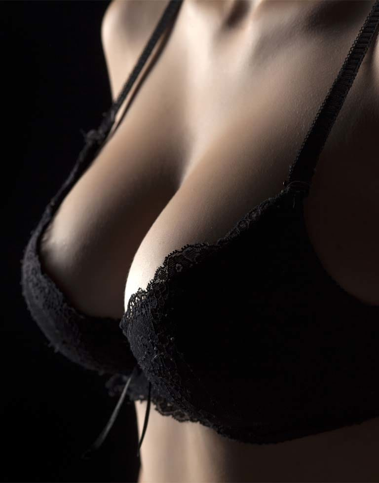 Refresh Cosmetic Clinic - Tuberous Breasts Correction