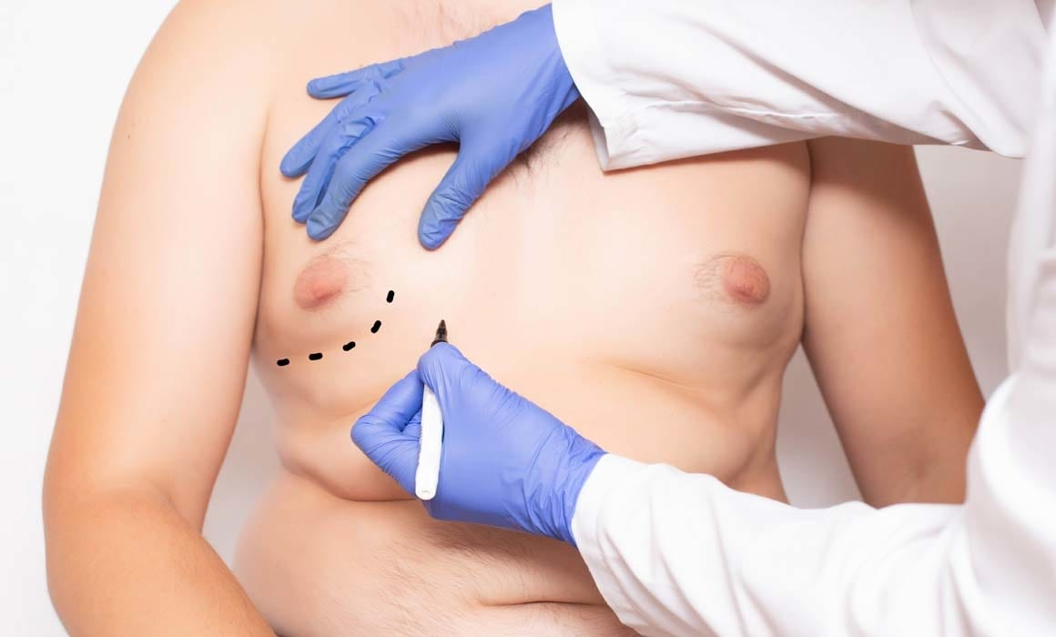 want to remove your moobs lets talk gynaecomastia