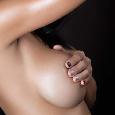what happens when breast implants are replaced